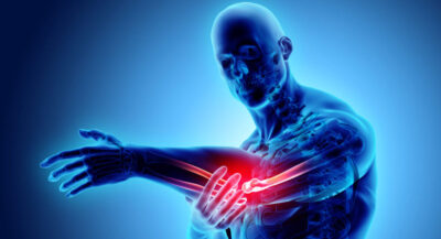 Lateral Elbow Pain