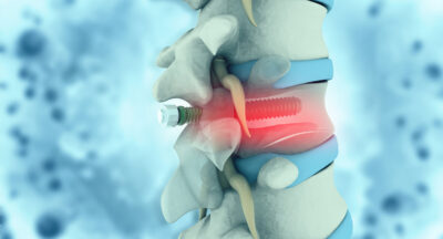 Part 2 – Spinal Surgery : Acute and Late Stage Physiotherapy